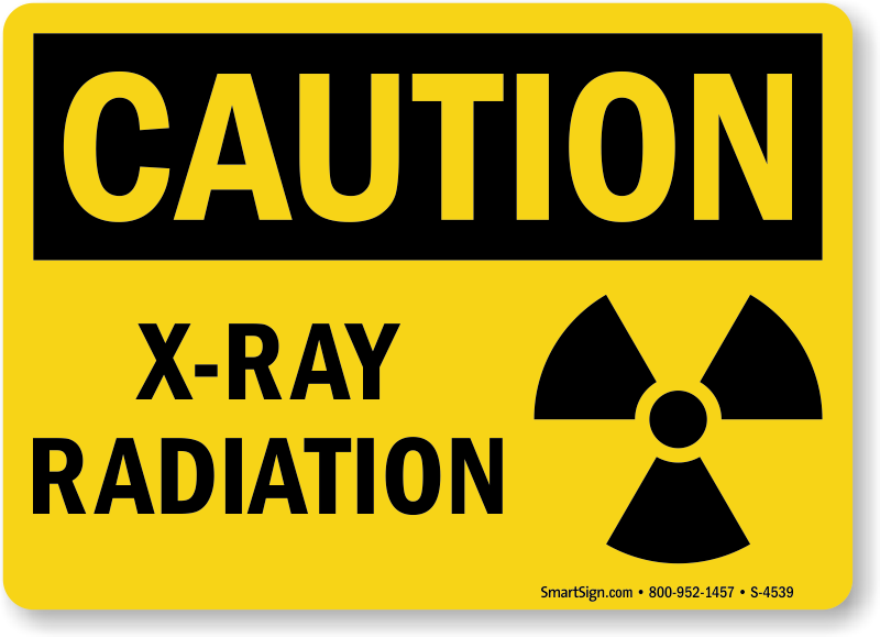 مخاطر الأشعة السينية